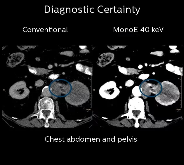 Diagnostic Certainty