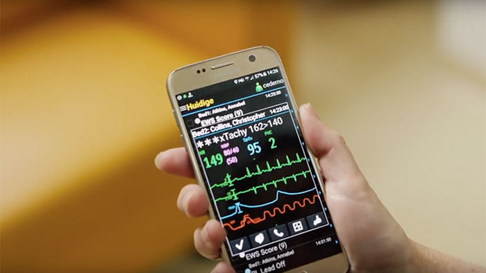 Using mobile devices to manage monitoring alarms with Philips CareEvent video
