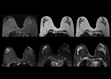 clinical cases 3 breast mri on multiva