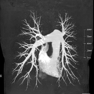 Pulmonary Artery CTA
