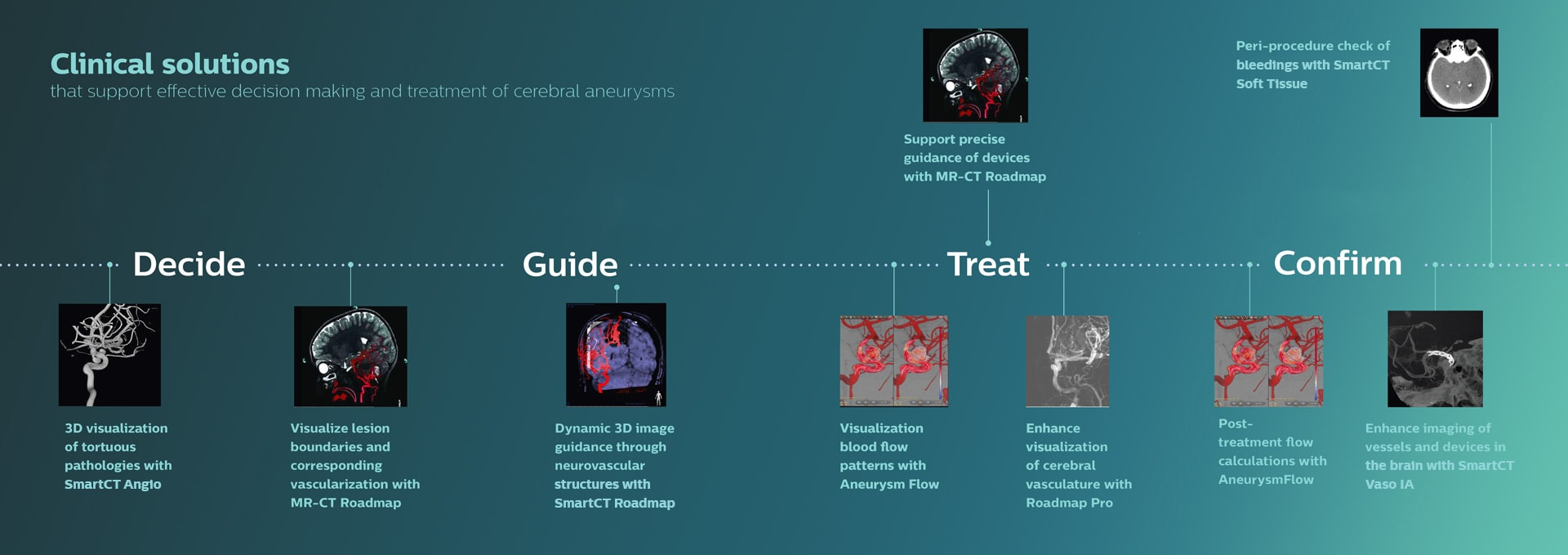 Clinical solutions for cerebral aneurysms download image